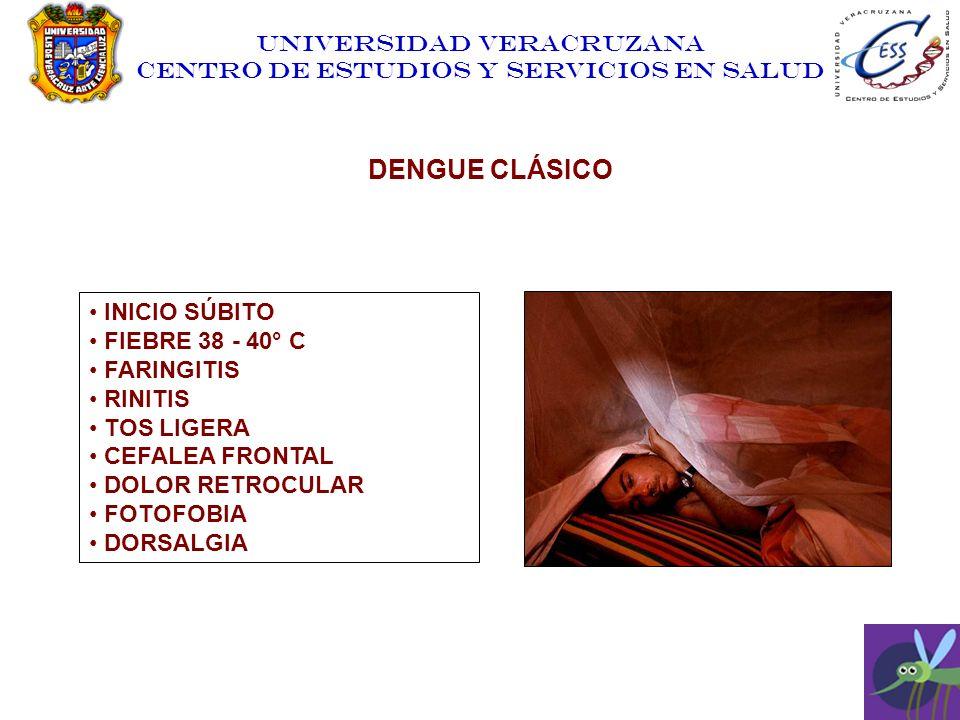 UNIVERSIDAD VERACRUZANA CENTRO DE ESTUDIOS Y SERVICIOS EN SALUD INICIO SÚBITO FIEBRE 38 - 40° C FARINGITIS RINITIS TOS LIGERA CEFALEA FRONTAL DOLOR RE