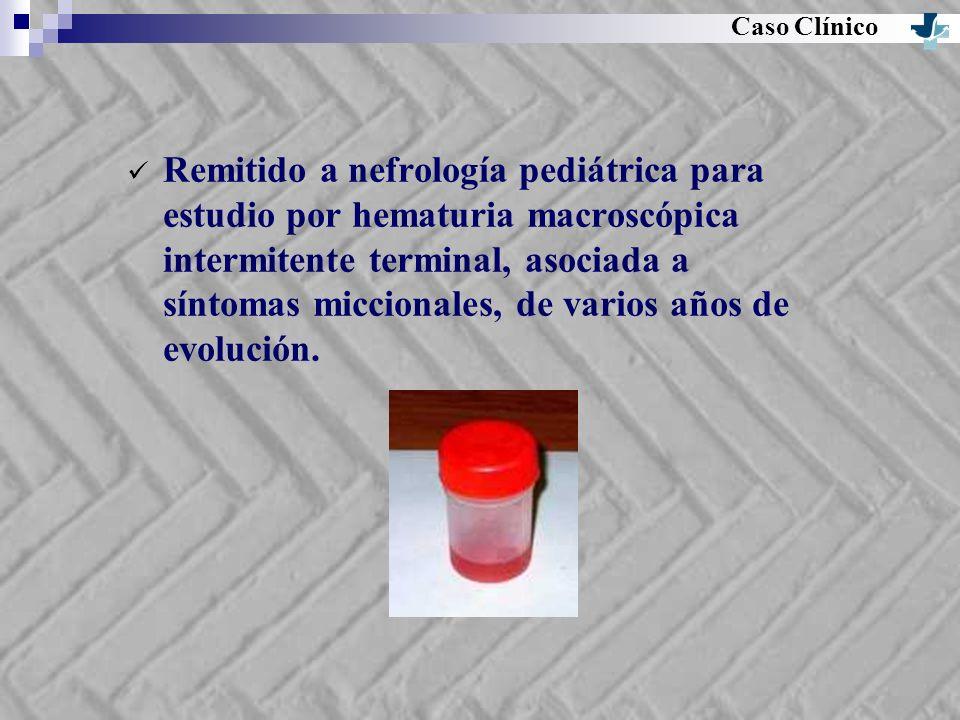 Caso Clínico Remitido a nefrología pediátrica para estudio por hematuria macroscópica intermitente terminal, asociada a síntomas miccionales, de vario