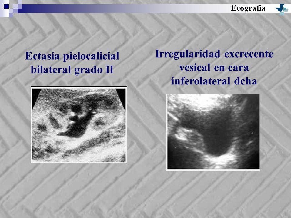 Ecografía Ectasia pielocalicial bilateral grado II Irregularidad excrecente vesical en cara inferolateral dcha