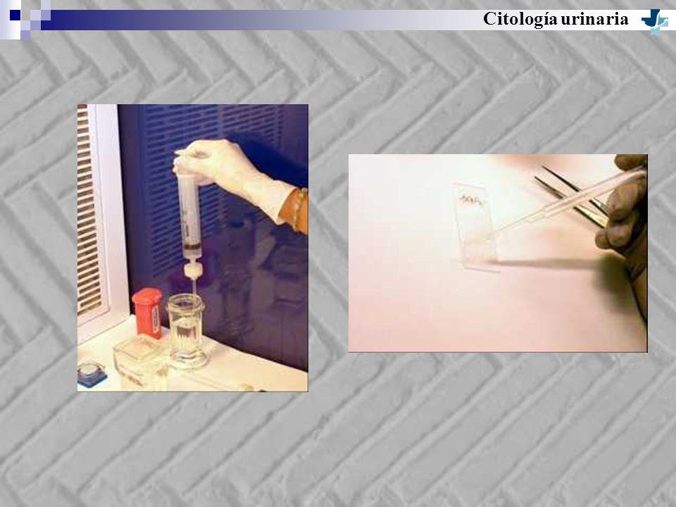 Citología urinaria