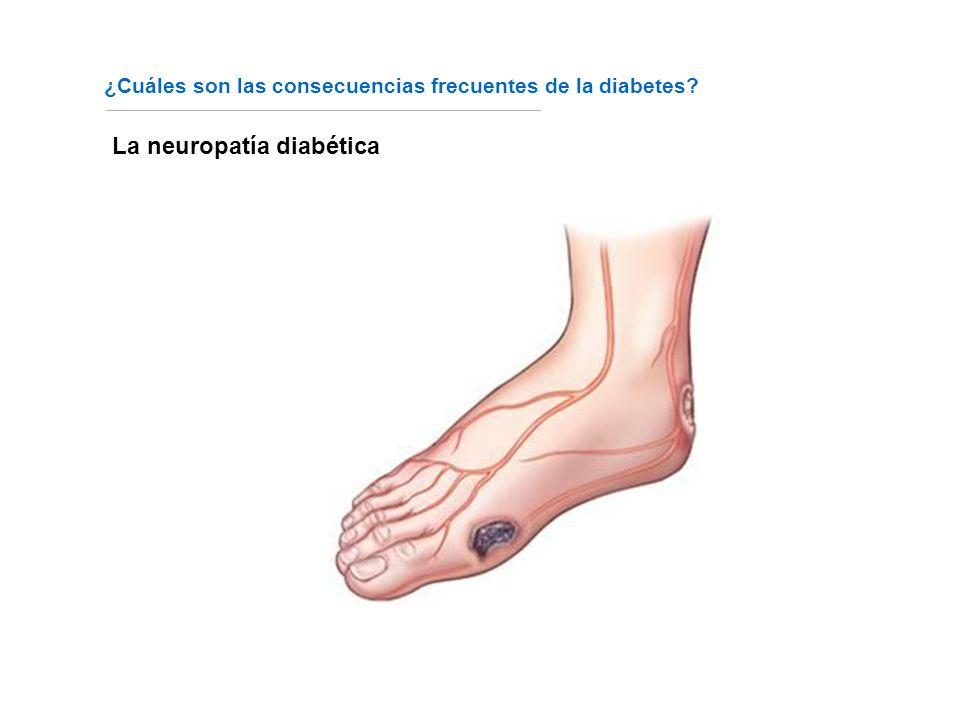 La neuropatía diabética ¿Cuáles son las consecuencias frecuentes de la diabetes?