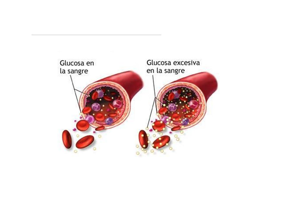 ¿Qué pasa si hay más glucosa de la debida? Fuente: http://www.fundaciondiabetes.org/box02.htm