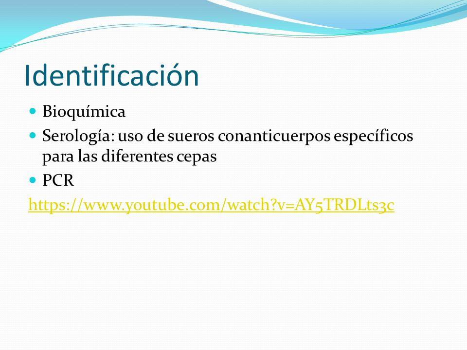 Identificación Bioquímica Serología: uso de sueros conanticuerpos específicos para las diferentes cepas PCR https://www.youtube.com/watch?v=AY5TRDLts3