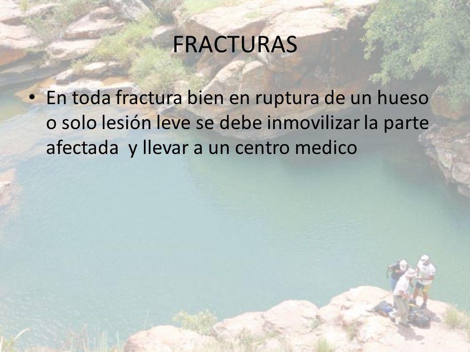 FRACTURAS En toda fractura bien en ruptura de un hueso o solo lesión leve se debe inmovilizar la parte afectada y llevar a un centro medico