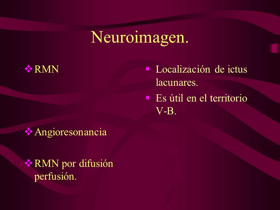 Neuroimagen. RMN Angioresonancia RMN por difusión perfusión. Localización de ictus lacunares. Es útil en el territorio V-B.