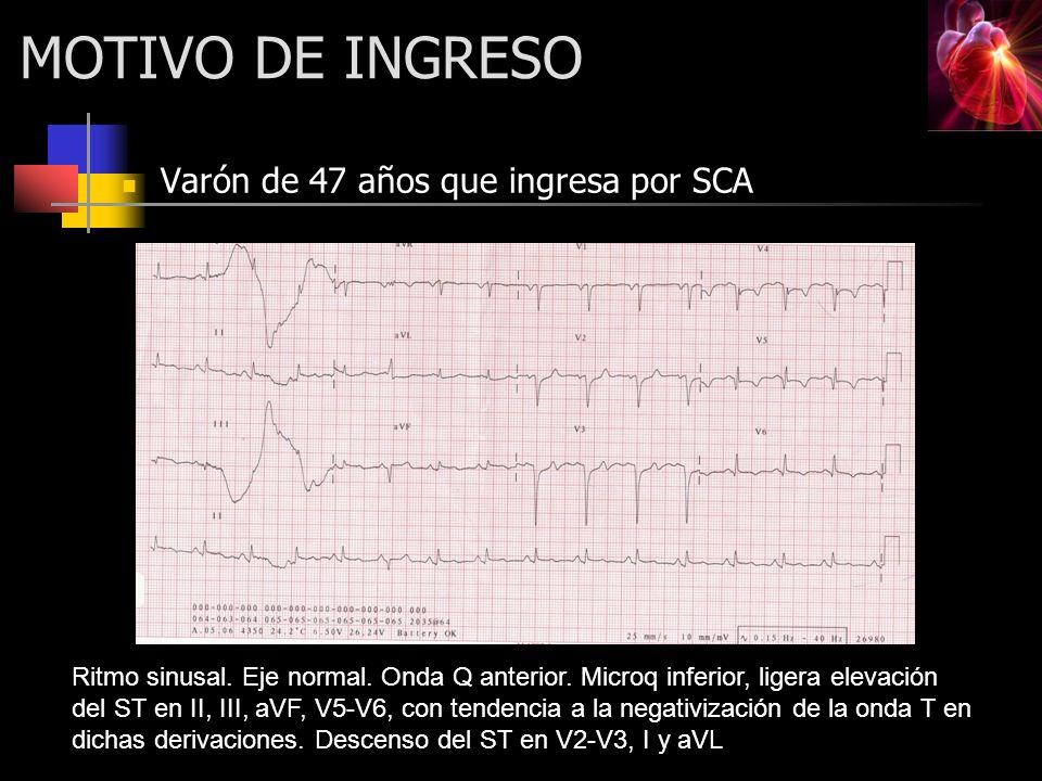 MOTIVO DE INGRESO Varón de 47 años que ingresa por SCA Ritmo sinusal. Eje normal. Onda Q anterior. Microq inferior, ligera elevación del ST en II, III