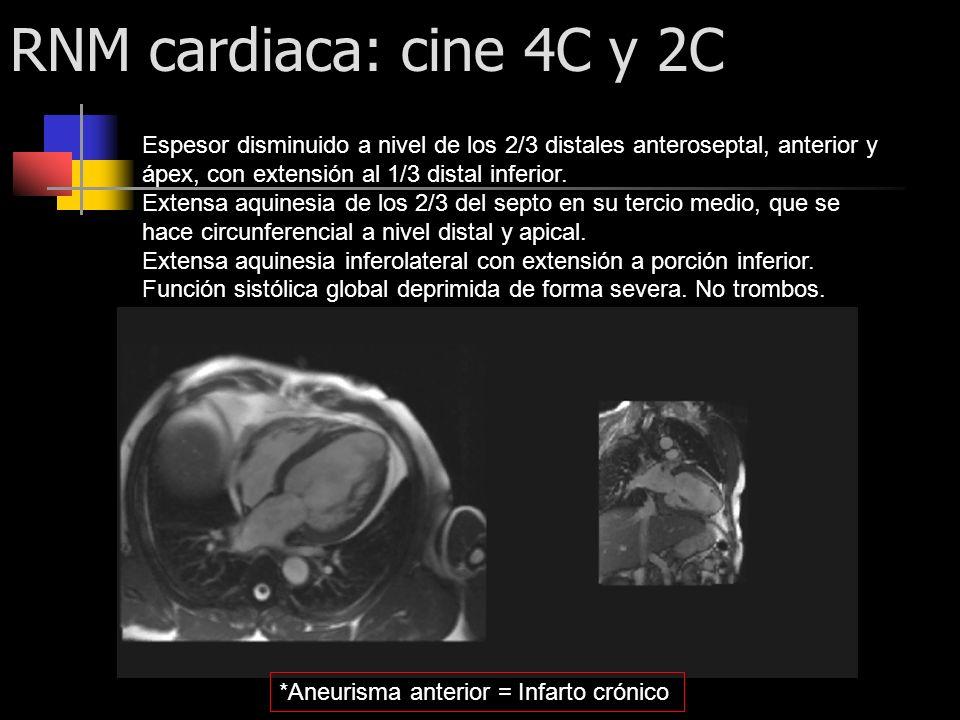 RNM cardiaca: cine 4C y 2C Espesor disminuido a nivel de los 2/3 distales anteroseptal, anterior y ápex, con extensión al 1/3 distal inferior. Extensa