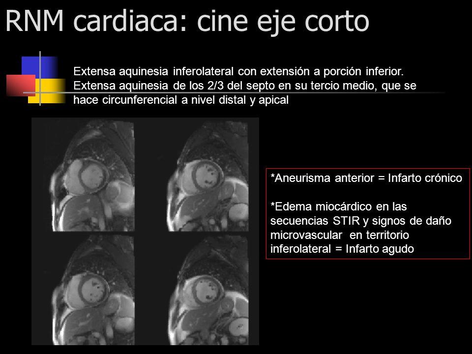 RNM cardiaca: cine eje corto Extensa aquinesia inferolateral con extensión a porción inferior. Extensa aquinesia de los 2/3 del septo en su tercio med