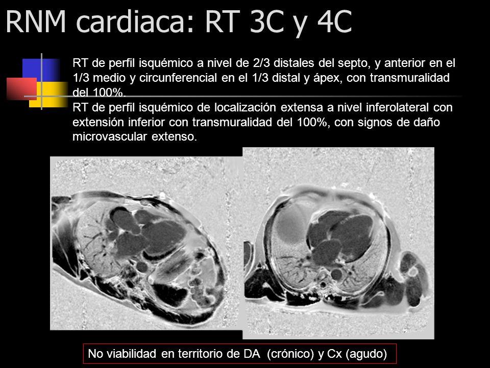 RNM cardiaca: RT 3C y 4C RT de perfil isquémico a nivel de 2/3 distales del septo, y anterior en el 1/3 medio y circunferencial en el 1/3 distal y ápe