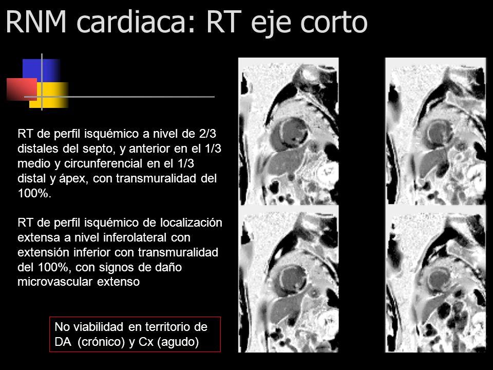 RNM cardiaca: RT eje corto RT de perfil isquémico a nivel de 2/3 distales del septo, y anterior en el 1/3 medio y circunferencial en el 1/3 distal y á