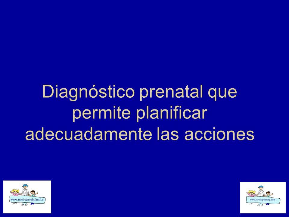 Diagnóstico prenatal que permite planificar adecuadamente las acciones