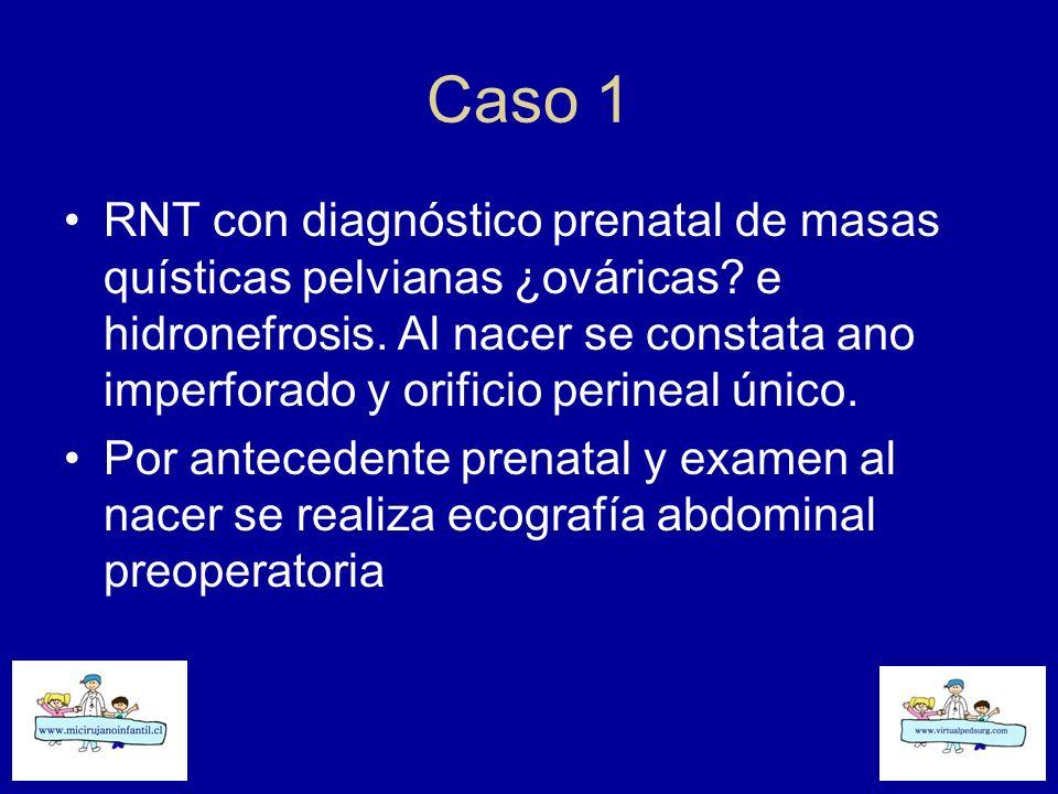 Caso 1 RNT con diagnóstico prenatal de masas quísticas pelvianas ¿ováricas? e hidronefrosis. Al nacer se constata ano imperforado y orificio perineal