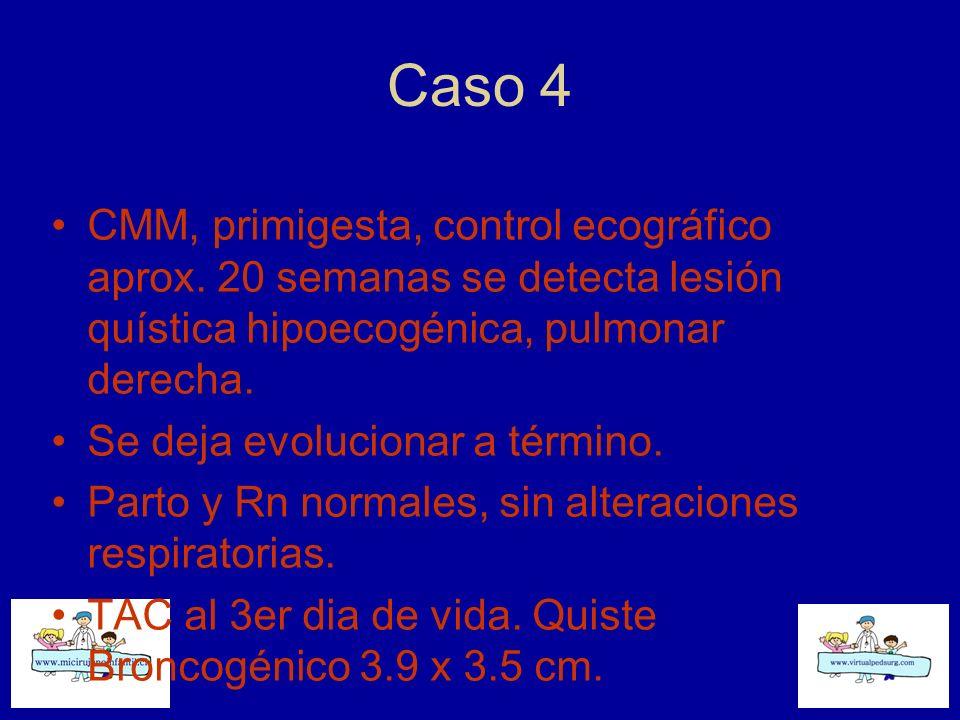 Caso 4 CMM, primigesta, control ecográfico aprox. 20 semanas se detecta lesión quística hipoecogénica, pulmonar derecha. Se deja evolucionar a término
