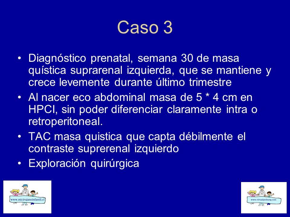 Caso 3 Diagnóstico prenatal, semana 30 de masa quística suprarenal izquierda, que se mantiene y crece levemente durante último trimestre Al nacer eco
