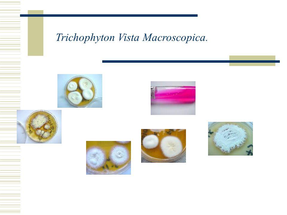 Trichophyton vista Microscópica.