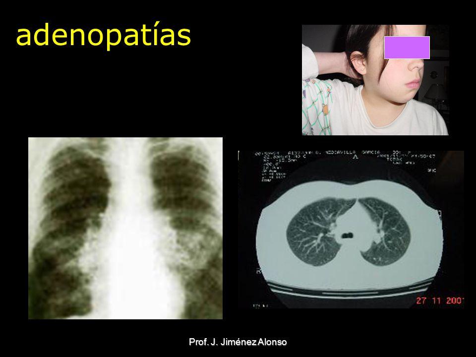 Prof. J. Jiménez Alonso adenopatías