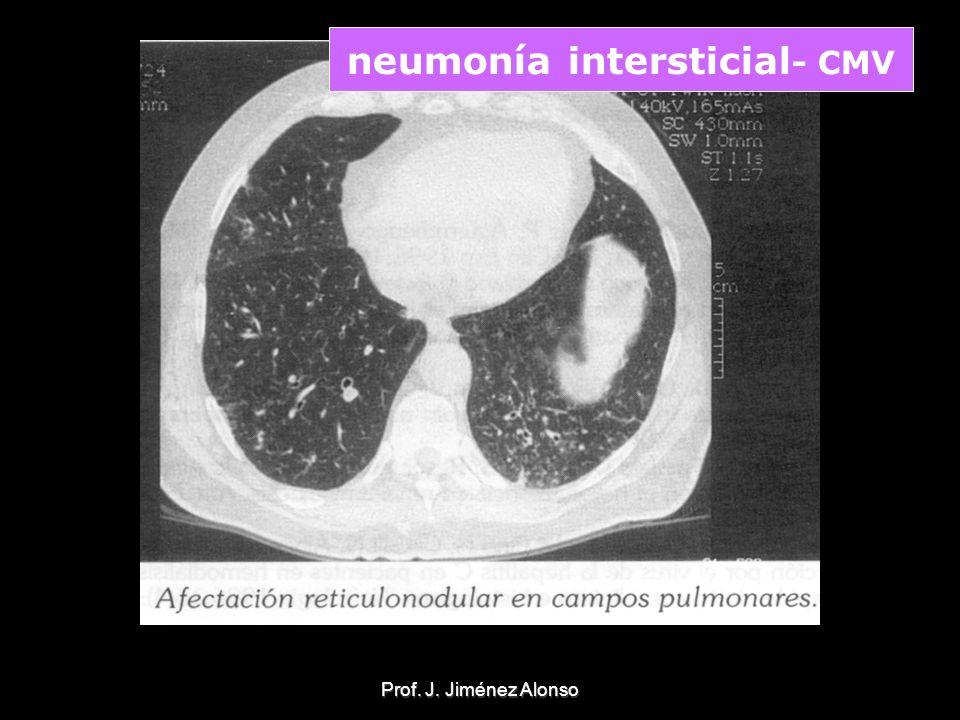 Prof. J. Jiménez Alonso neumonía intersticial - CMV