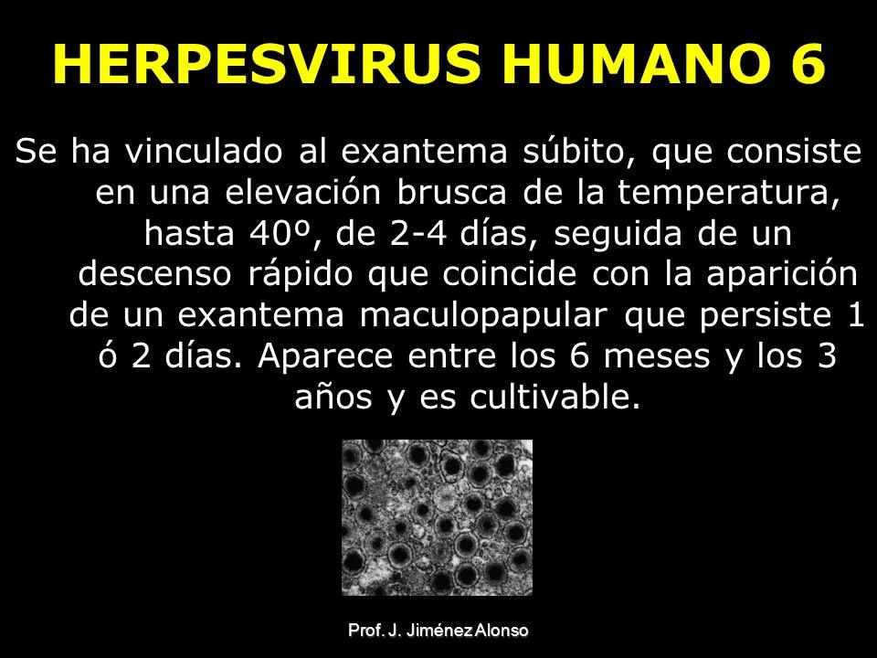 Prof. J. Jiménez Alonso HERPESVIRUS HUMANO 6 Se ha vinculado al exantema súbito, que consiste en una elevación brusca de la temperatura, hasta 40º, de