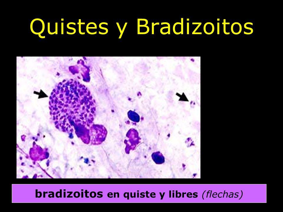 Prof. J. Jiménez Alonso Quistes y Bradizoitos bradizoitos en quiste y libres (flechas)