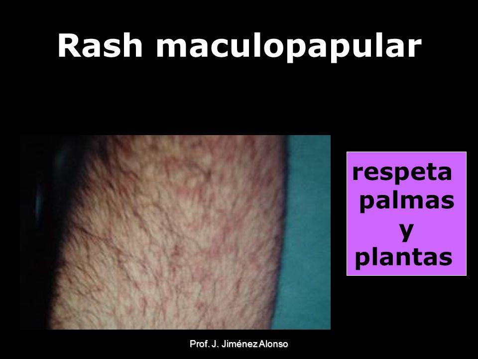 Prof. J. Jiménez Alonso Rash maculopapular respeta palmas y plantas