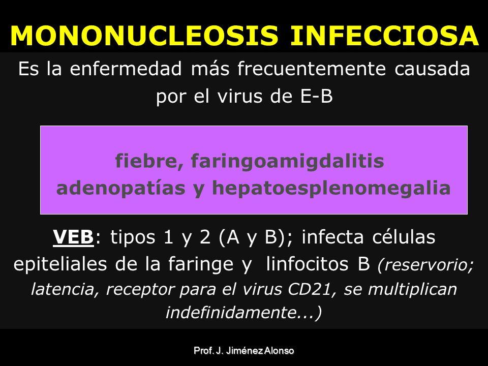 Prof.J. Jiménez Alonso Diagnóstico -Primoinfección: * Dx: Acs.
