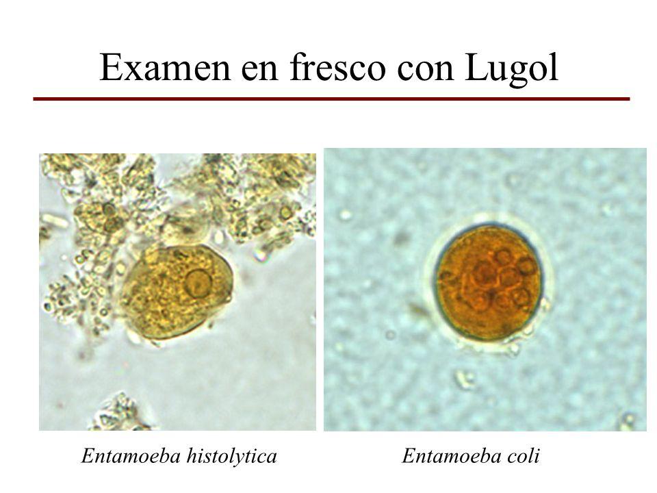 Examen en fresco con Lugol Entamoeba histolyticaEntamoeba coli