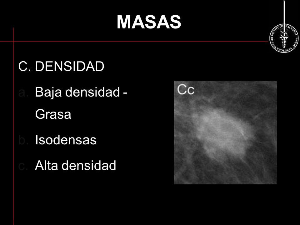 MASAS C. DENSIDAD a.Baja densidad - Grasa b.Isodensas c.Alta densidad ACR BI-RADS 2003