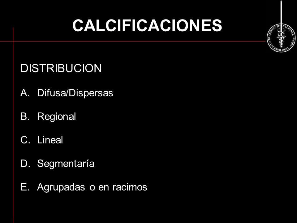 CALCIFICACIONES DISTRIBUCION A.Difusa/Dispersas B.Regional C.Lineal D.Segmentaría E.Agrupadas o en racimos ACR BI-RADS 2003