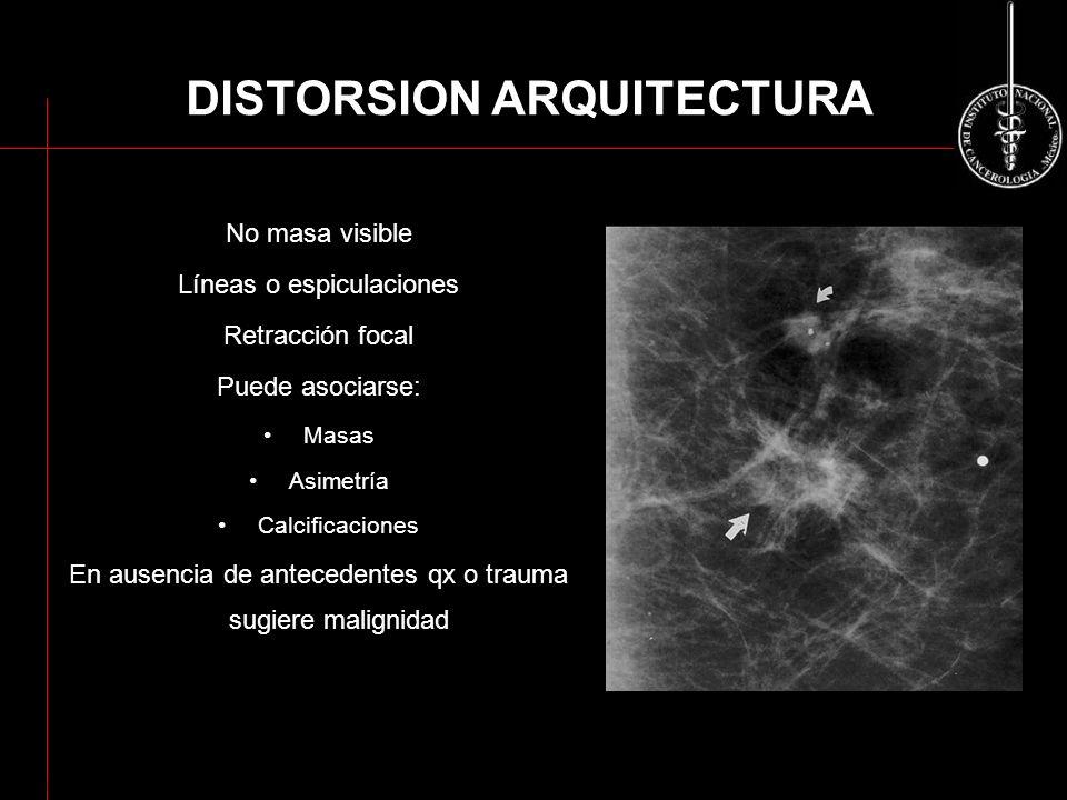 No masa visible Líneas o espiculaciones Retracción focal Puede asociarse: Masas Asimetría Calcificaciones En ausencia de antecedentes qx o trauma sugi