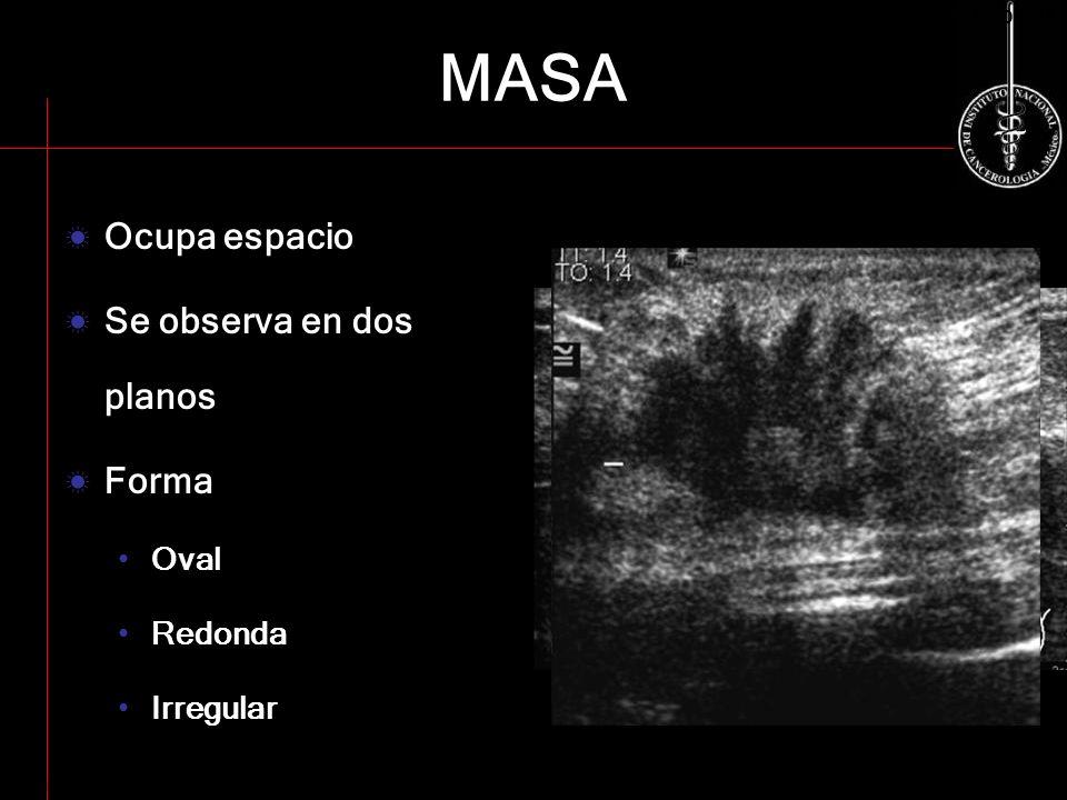 MASA Ocupa espacio Se observa en dos planos Forma Oval Redonda Irregular ACR BI-RADS-US ACR BI-RADS 2003