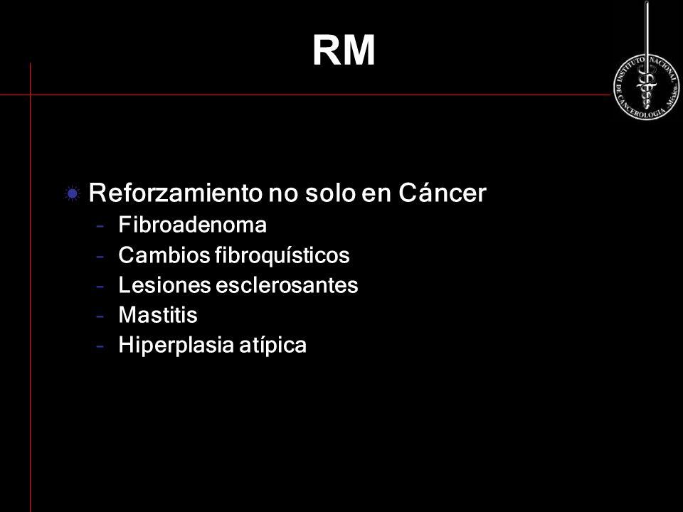 RM Reforzamiento no solo en Cáncer –Fibroadenoma –Cambios fibroquísticos –Lesiones esclerosantes –Mastitis –Hiperplasia atípica
