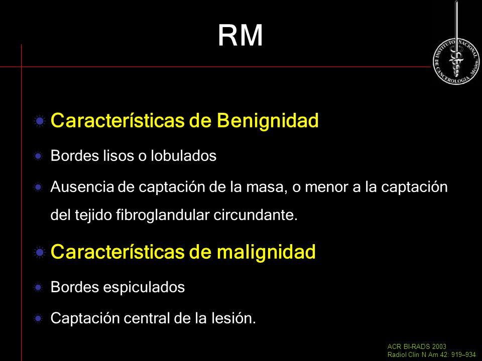 RM Características de Benignidad Bordes lisos o lobulados Ausencia de captación de la masa, o menor a la captación del tejido fibroglandular circundan