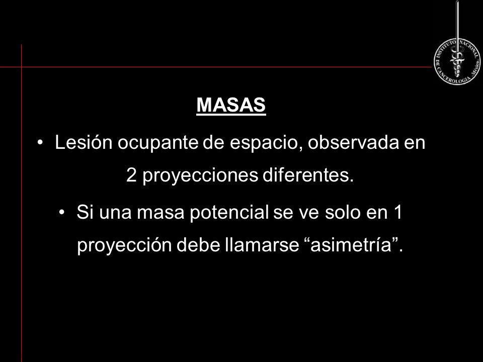 MASAS Lesión ocupante de espacio, observada en 2 proyecciones diferentes. Si una masa potencial se ve solo en 1 proyección debe llamarse asimetría. AC