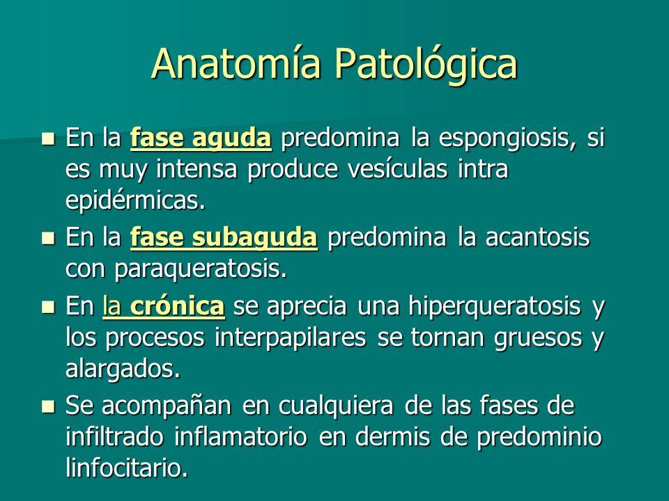 Eccema irritativo de contacto Definición: Definición: Un daño no específico de la piel despúes de la exposición a un irritante que es capaz de provocar una lesión celular sin que participen mecanismos inmunólogicos.