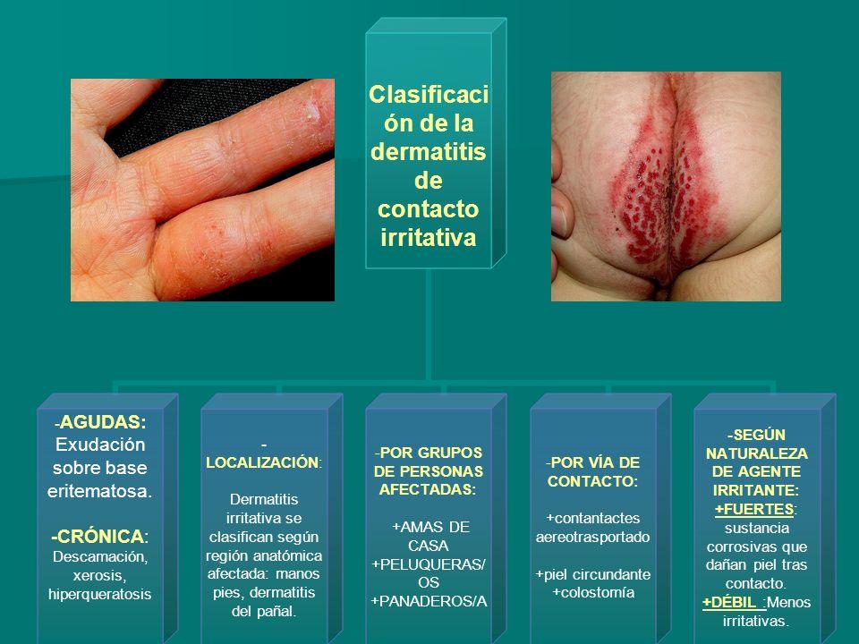 Distribución anatómica del eccema de contacto y sus causas más frecuentes Cuero cabelludo: tintes, medicaciones tópicas, lociones y cosméticos capilares.