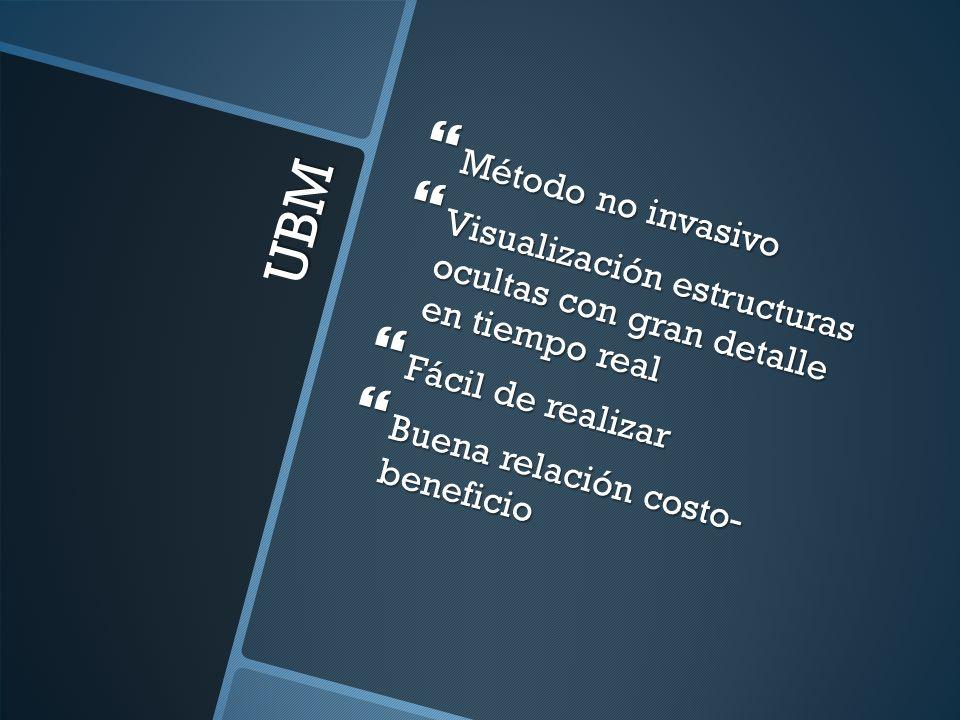 UBM Método no invasivo Método no invasivo Visualización estructuras ocultas con gran detalle en tiempo real Visualización estructuras ocultas con gran