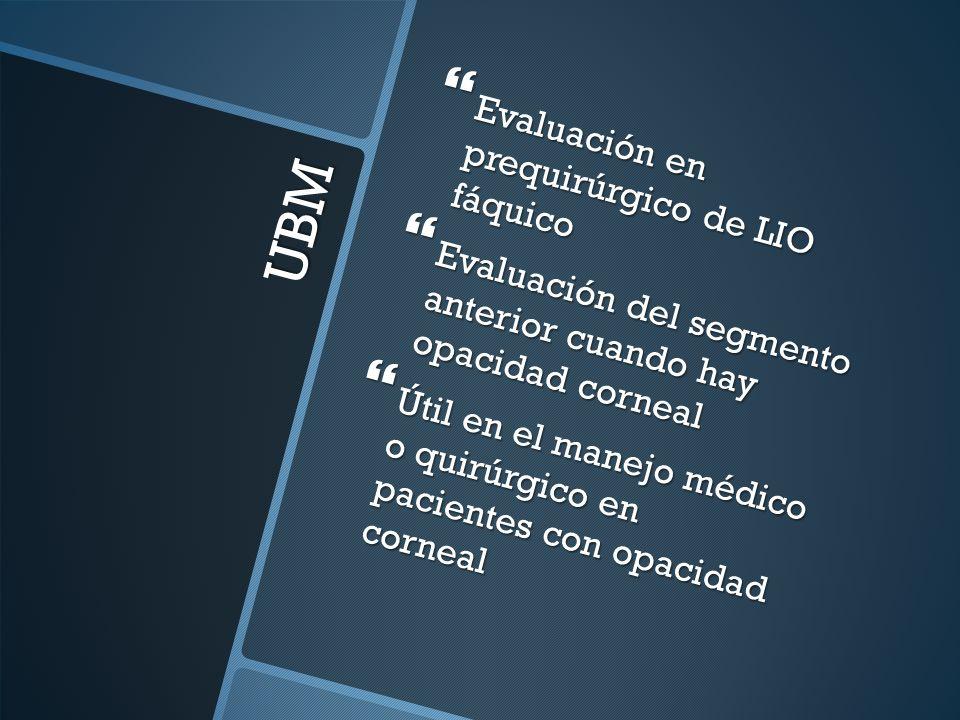 UBM Evaluación en prequirúrgico de LIO fáquico Evaluación en prequirúrgico de LIO fáquico Evaluación del segmento anterior cuando hay opacidad corneal