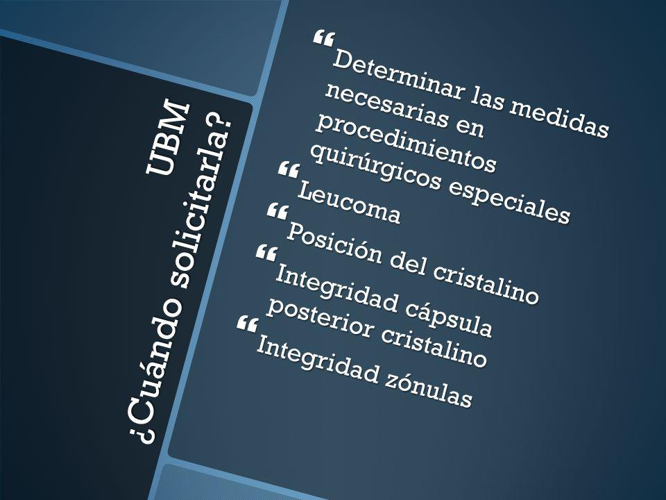 CRISTALINO LUXADO A CÁMARA ANTERIOR SINEQUIAS POSTERIORES