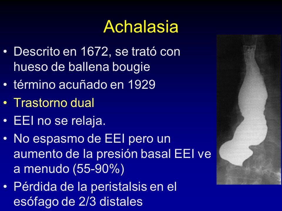 Achalasia Descrito en 1672, se trató con hueso de ballena bougie término acuñado en 1929 Trastorno dual EEI no se relaja.