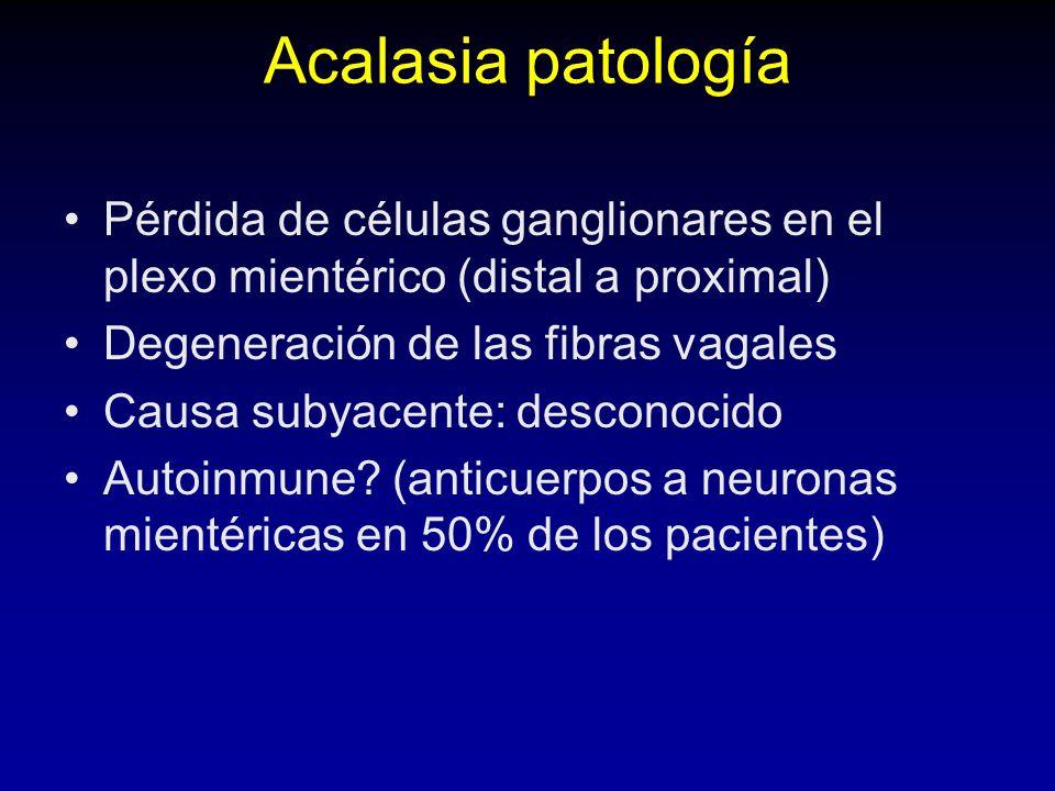 Acalasia patología Pérdida de células ganglionares en el plexo mientérico (distal a proximal) Degeneración de las fibras vagales Causa subyacente: desconocido Autoinmune.