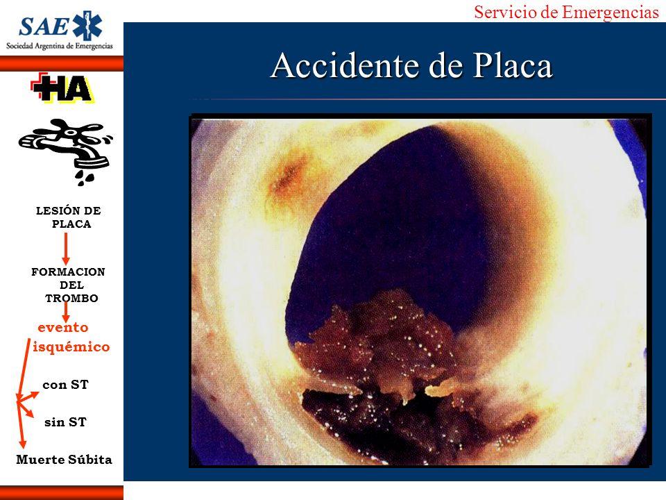 Servicio de Emergencias Alberto José Machado IntroducciónNomencEmergFXTriageCasoDiagnósticoTiempo Accidente de Placa LESIÓN DE PLACA FORMACION DEL TRO