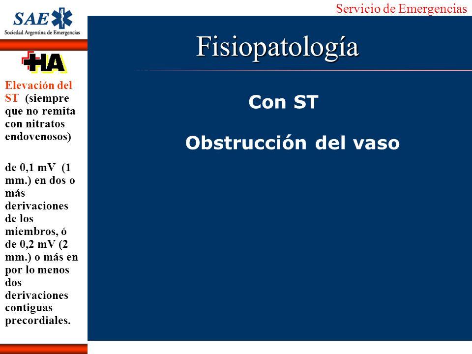Servicio de Emergencias Alberto José Machado IntroducciónNomencEmergFXTriageCasoDiagnósticoTiempoFisiopatología Con ST Obstrucción del vaso Elevación