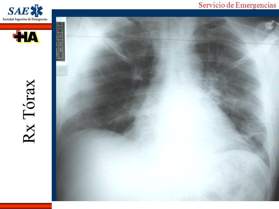 Servicio de Emergencias Alberto José Machado IntroducciónNomencEmergFXTriageCasoDiagnósticoTiempo Diagnóstico s/evidencia ECG: SCA 76%S/88%E IAM 68%S/97%E B CK: IAM 37%S/87%E B/C CKmb: SCA 23%S/96%E IAM 42%S/97%E C/B MyoG: IAM 49%S/91%E B/C TropT/I: IAM 39%S/93%E C PEG: SCA 85%S/87%E B ACI-TIPI: SCA 90%S/85%E A Goldman: IAM 90%S/72%E A J.Lau y col.