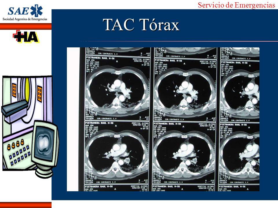 Servicio de Emergencias Alberto José Machado IntroducciónNomencEmergFXTriageCasoDiagnósticoTiempo TAC Tórax