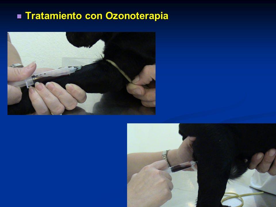 Tratamiento con Ozonoterapia Tratamiento con Ozonoterapia
