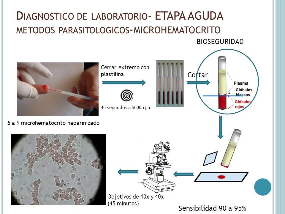 D IAGNOSTICO DE LABORATORIO - ETAPA AGUDA METODOS PARASITOLOGICOS - MICROHEMATOCRITO Sensibilidad 90 a 95% 45 segundos a 5000 rpm 6 a 9 microhematocri