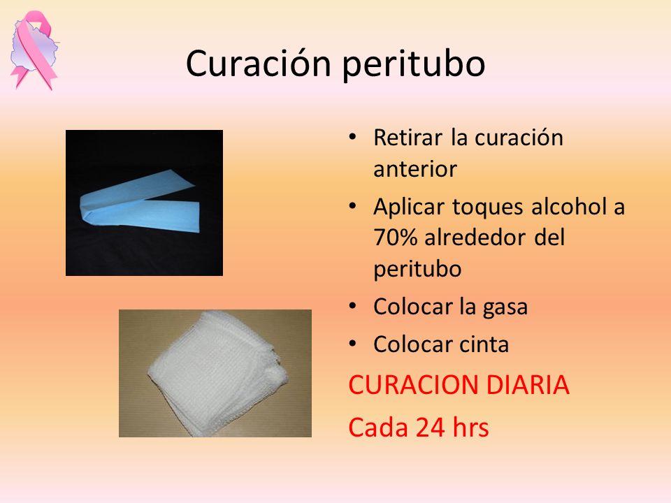 Curación peritubo Retirar la curación anterior Aplicar toques alcohol a 70% alrededor del peritubo Colocar la gasa Colocar cinta CURACION DIARIA Cada