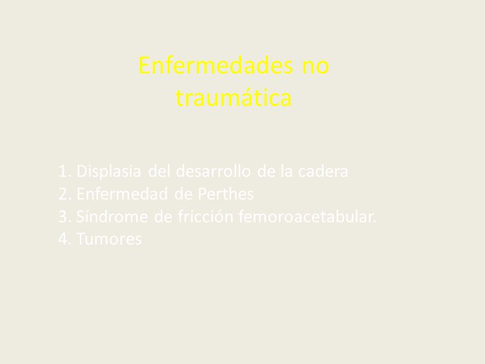 Síndrome de fricción femoroacetabular. Deformidad femoral: Cam Deformidad Acetabular: Pincer