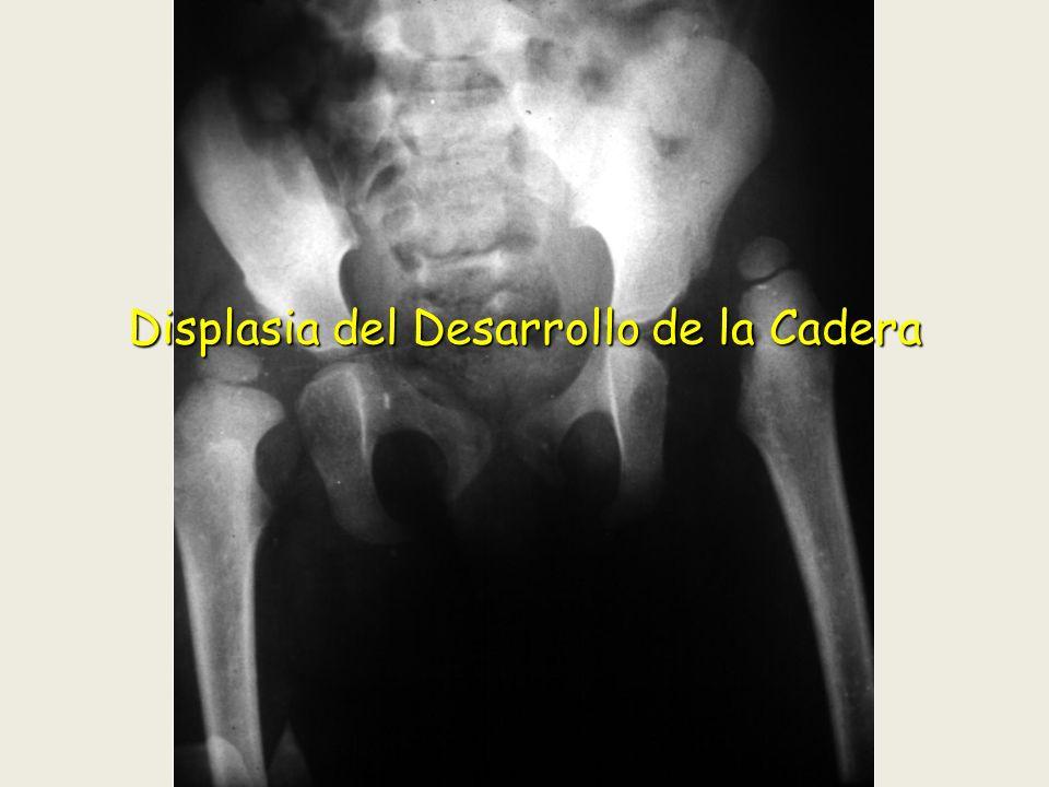 Sospecha EDAD.EDAD. Sintomatología. Sintomatología.