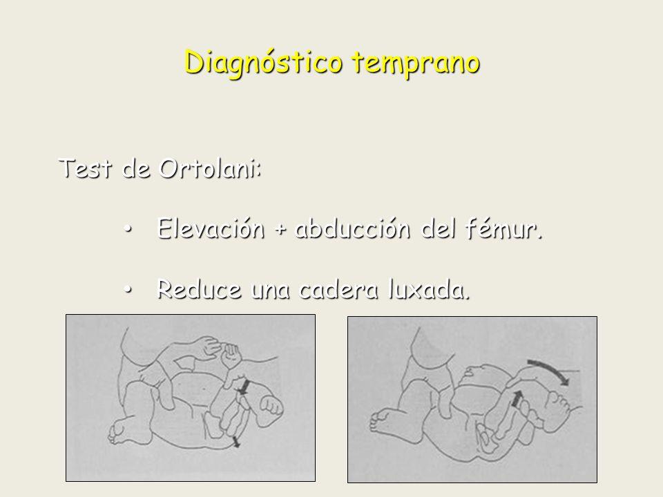 Enfermedades no traumática 3.Síndrome de fricción femoroacetabular.